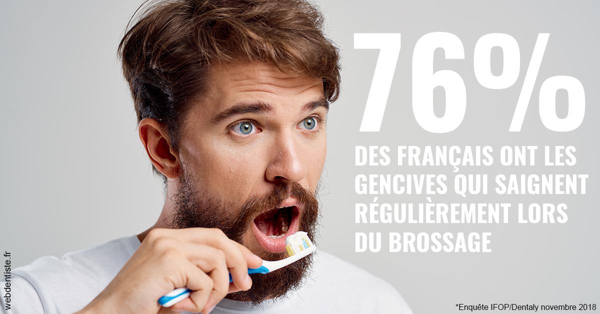 https://dr-pignot-jean-pierre.chirurgiens-dentistes.fr/76% des Français 2