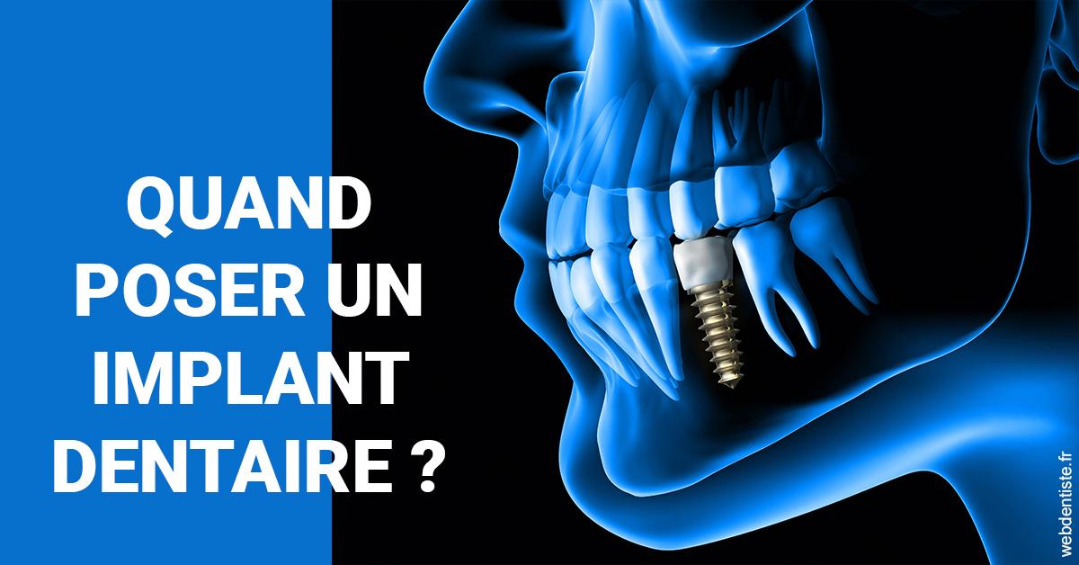 https://dr-pignot-jean-pierre.chirurgiens-dentistes.fr/Les implants 1